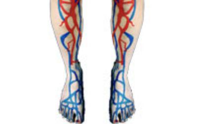 Варикозное расширение вен на ногах после родов
